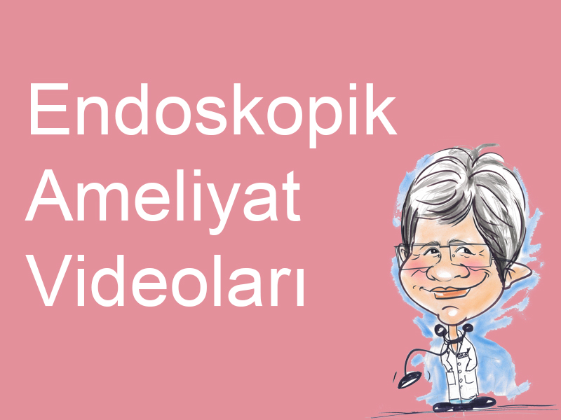 2-endoskopik-ameliyat-videolari
