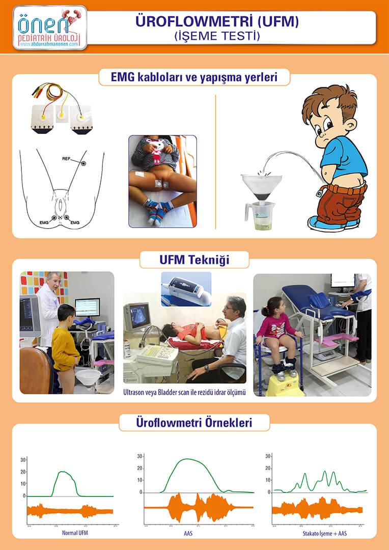 9a Ürodinami - UFM-2