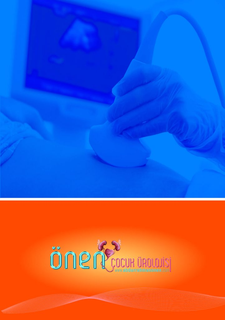 http://www.abdurrahmanonen.com/wp-content/uploads/2019/10/cocuklarda-uriner-ultrason_Sayfa_18-722x1024.jpg